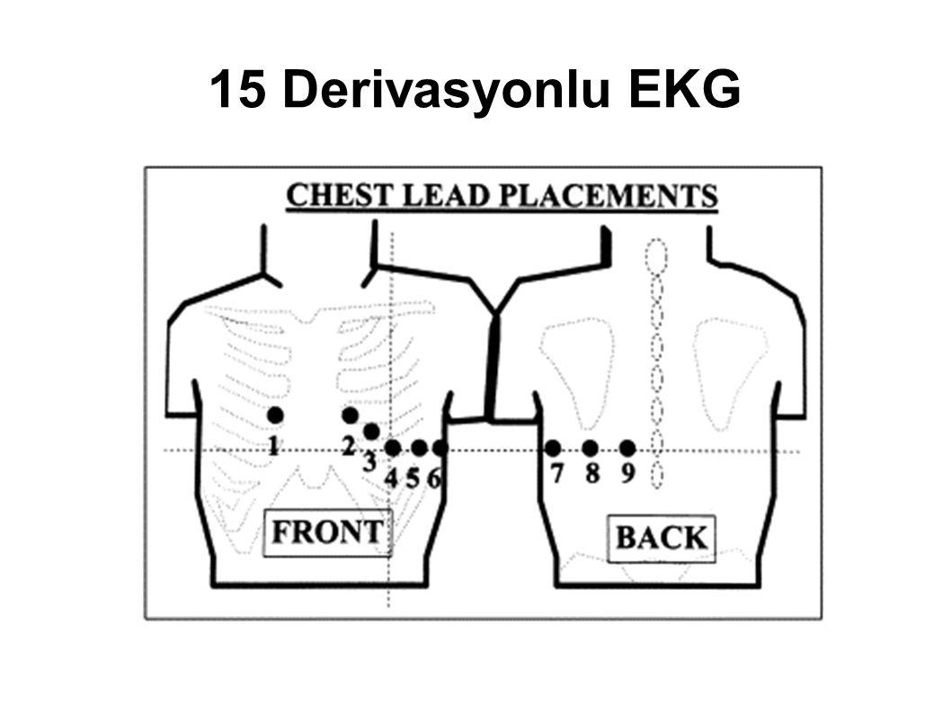 15 Derivasyonlu EKG