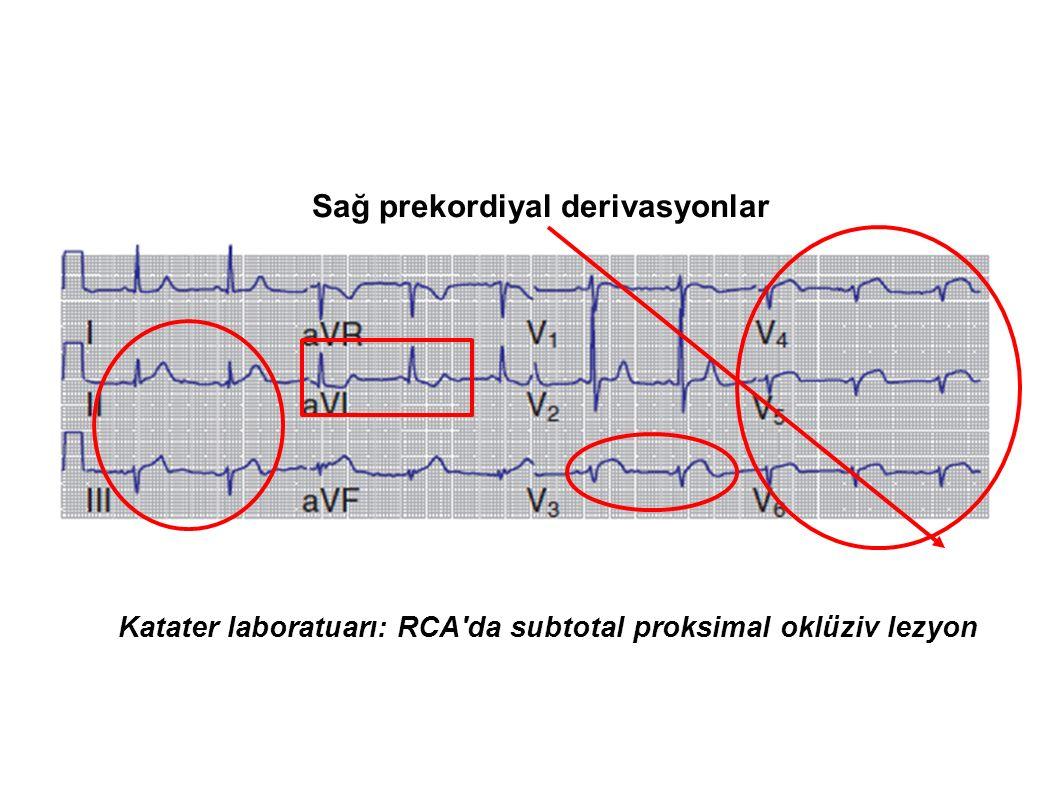 Katater laboratuarı: RCA da subtotal proksimal oklüziv lezyon