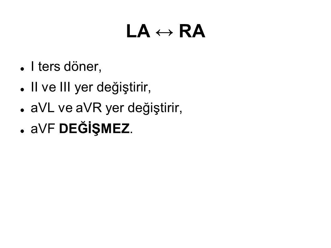 LA ↔ RA I ters döner, II ve III yer değiştirir,