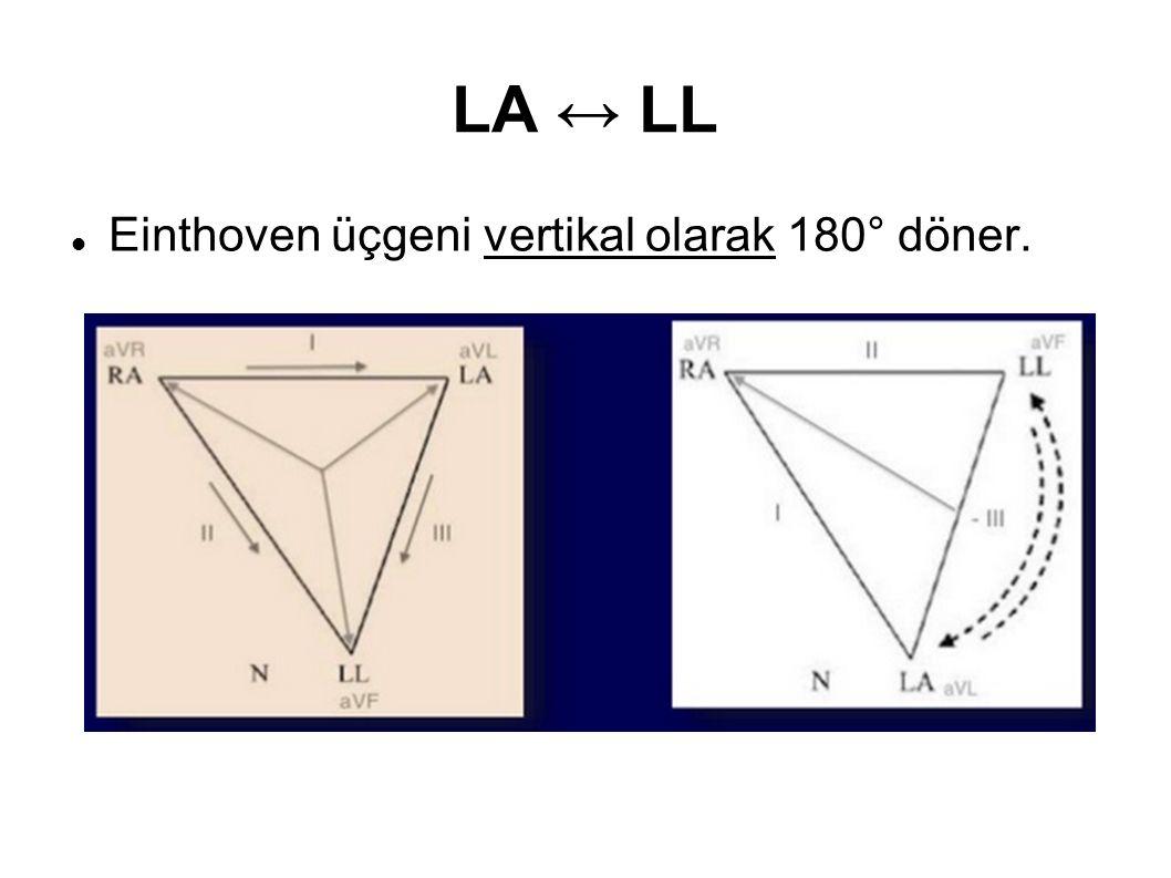 LA ↔ LL Einthoven üçgeni vertikal olarak 180° döner.
