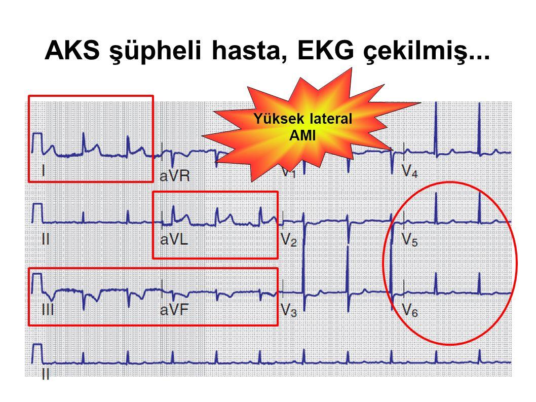 AKS şüpheli hasta, EKG çekilmiş...