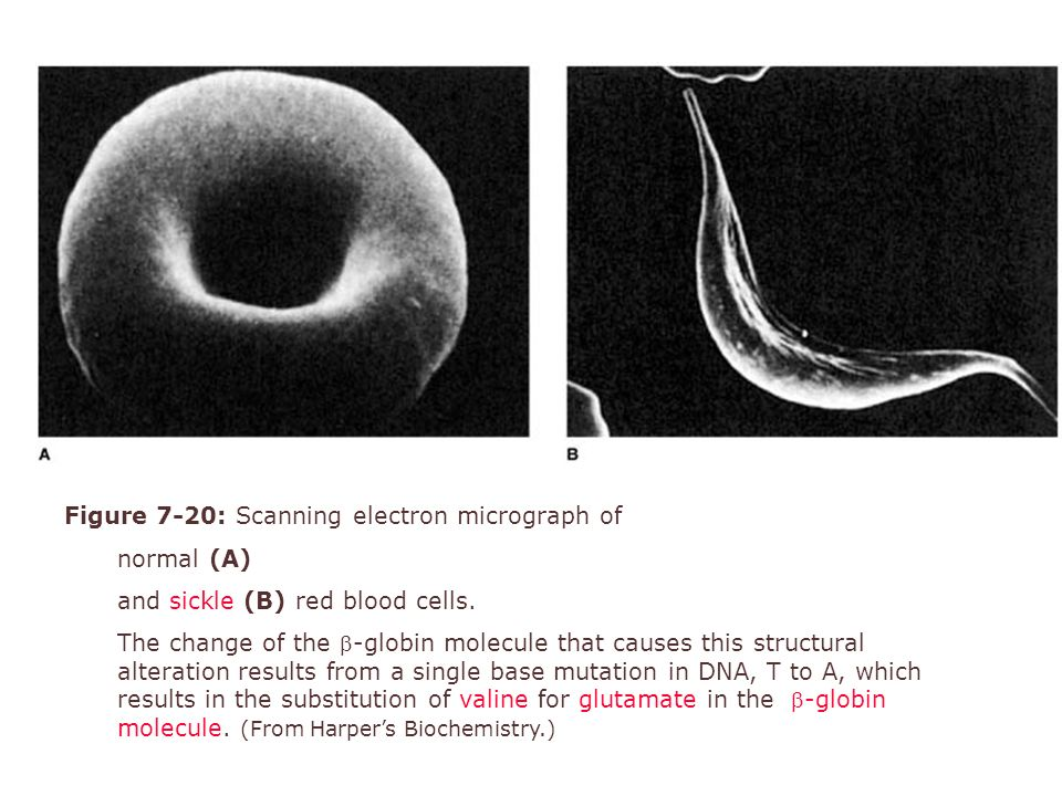 Figure 7-20: Scanning electron micrograph of