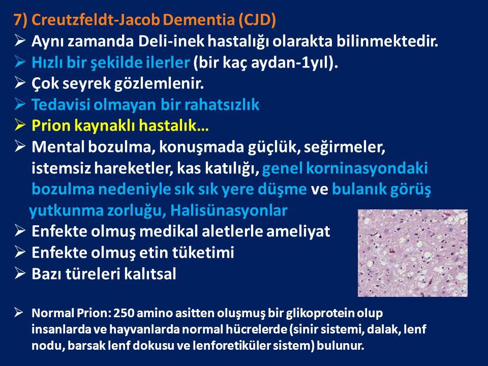 7) Creutzfeldt-Jacob Dementia (CJD)