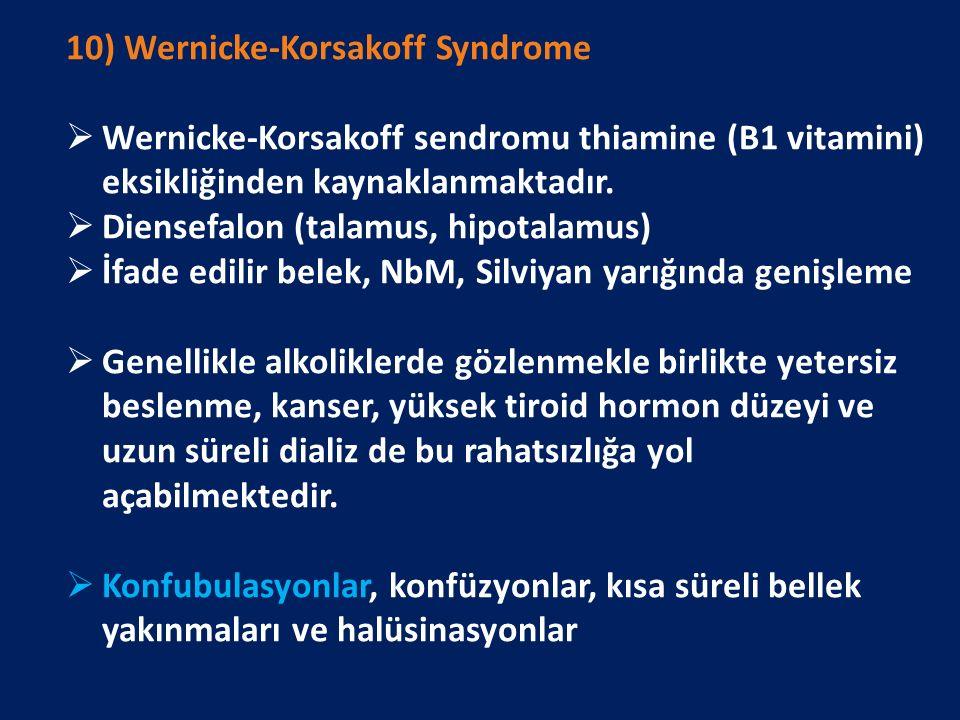 10) Wernicke-Korsakoff Syndrome