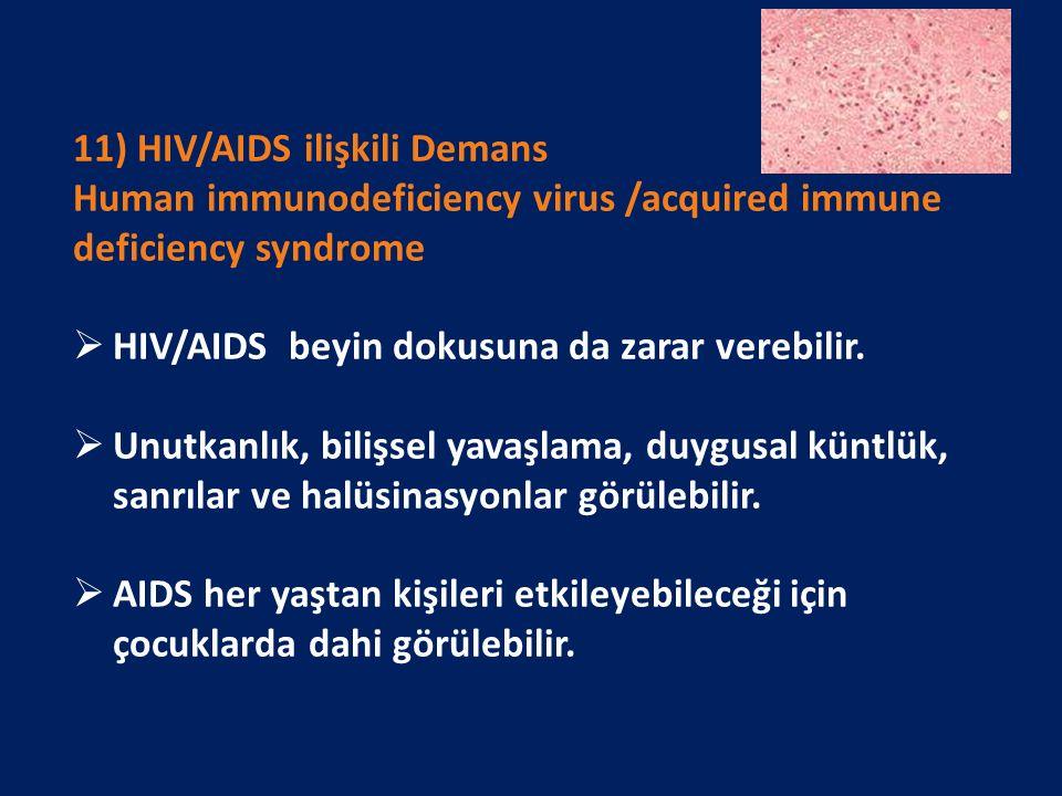 11) HIV/AIDS ilişkili Demans