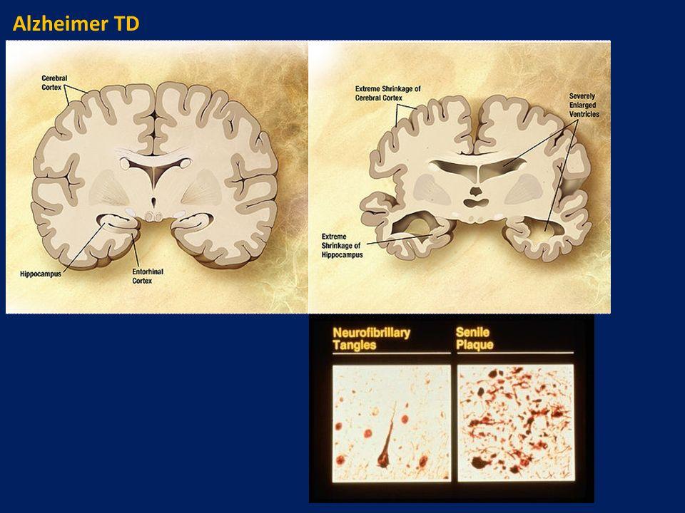 Alzheimer TD