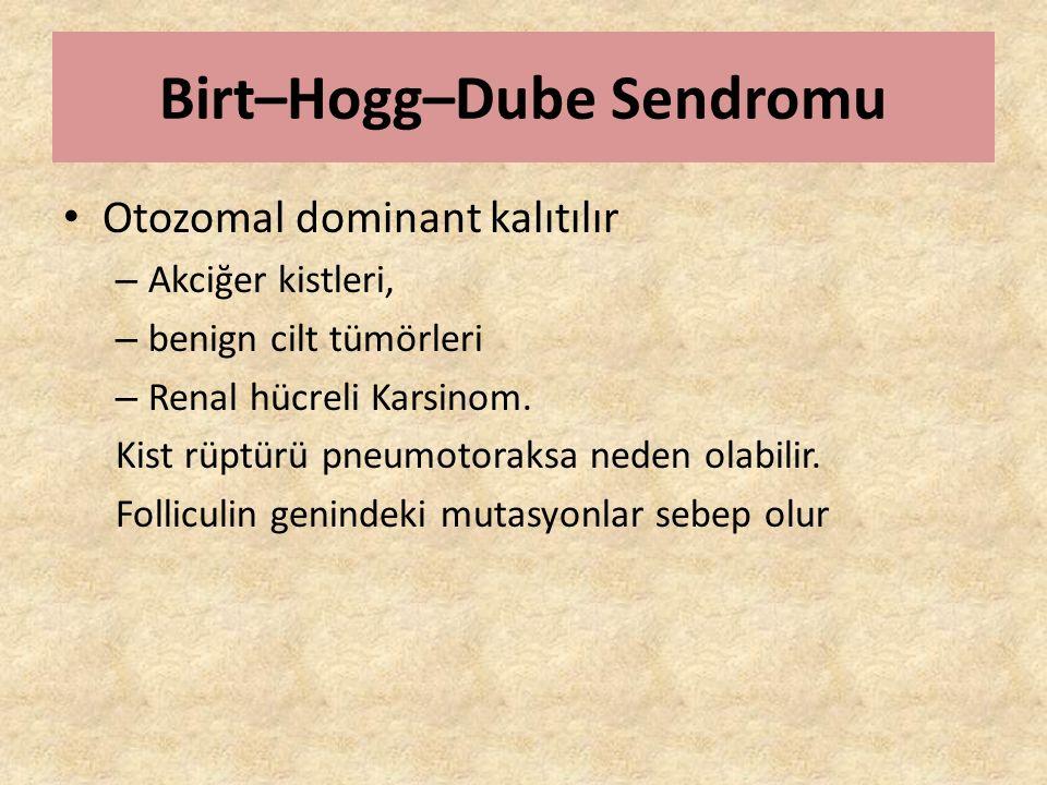 Birt–Hogg–Dube Sendromu