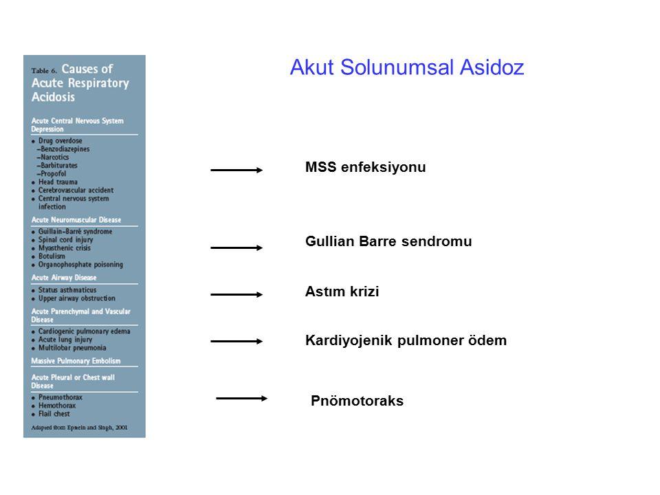 Akut Solunumsal Asidoz