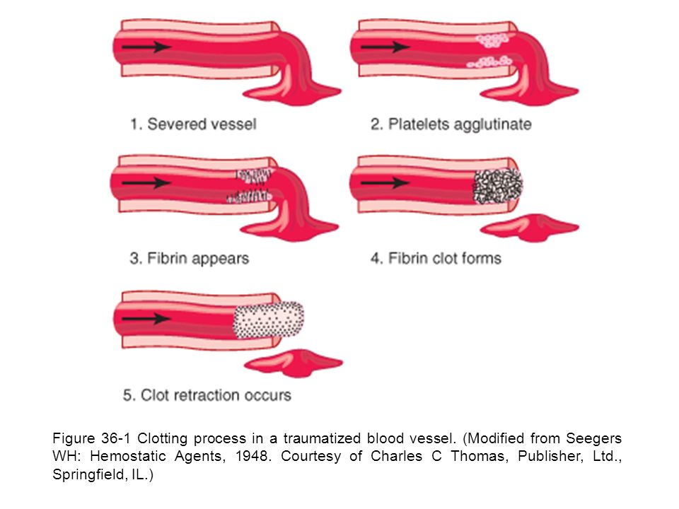 Figure 36-1 Clotting process in a traumatized blood vessel