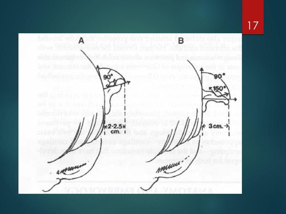 Normal bir kulak sayvanı baş ile 20-30 derecelik bir aurikülomastoid açı yapacak şekilde çıkıntı yapar.