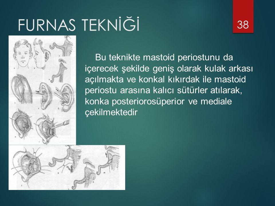 FURNAS TEKNİĞİ