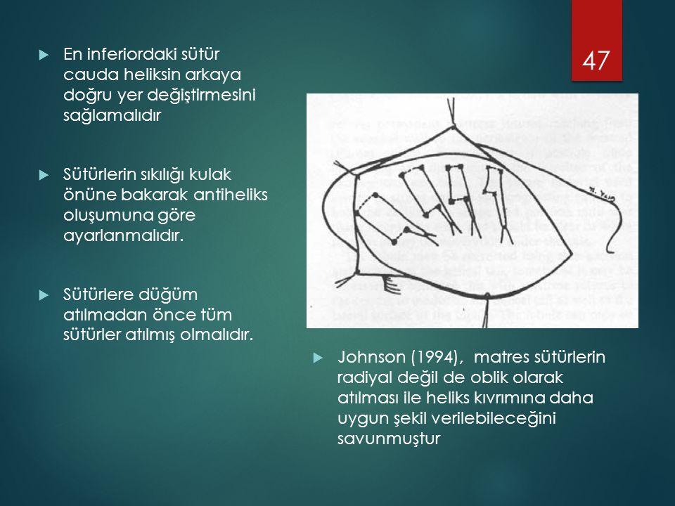 En inferiordaki sütür cauda heliksin arkaya doğru yer değiştirmesini sağlamalıdır