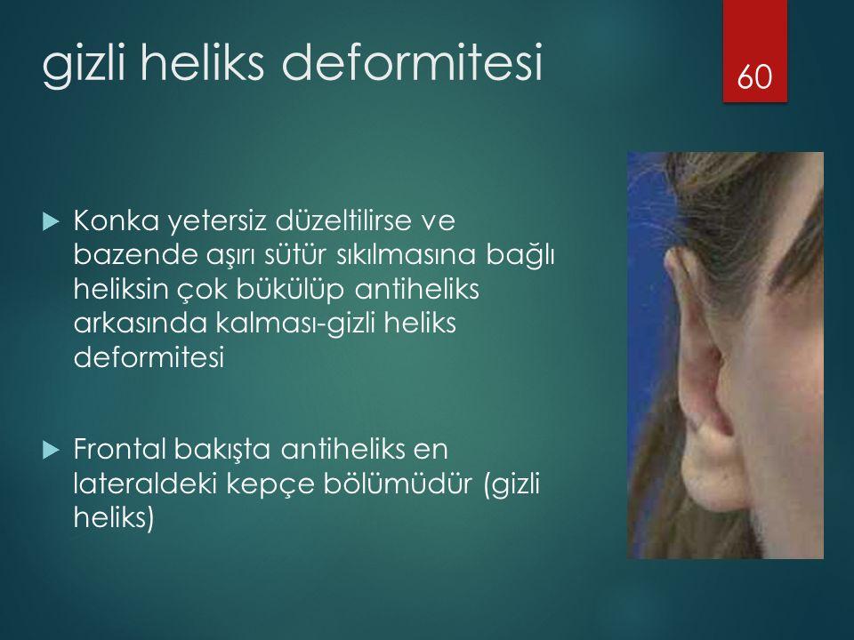 gizli heliks deformitesi