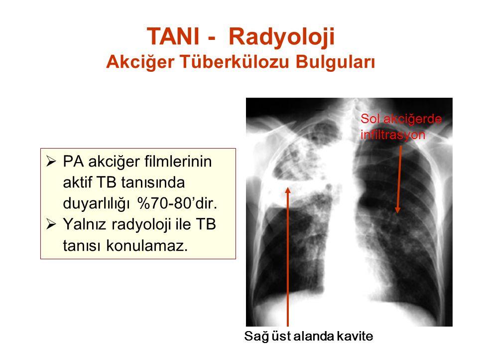 Akciğer Tüberkülozu Bulguları