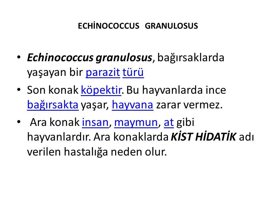 ECHİNOCOCCUS GRANULOSUS