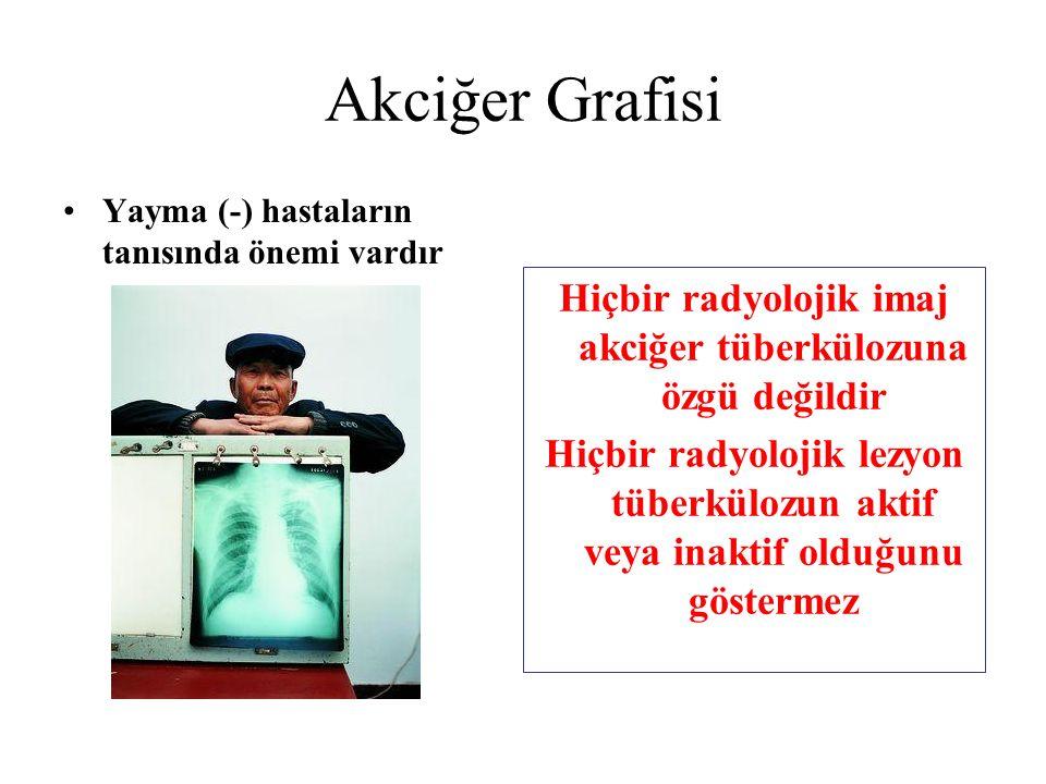 Hiçbir radyolojik imaj akciğer tüberkülozuna özgü değildir