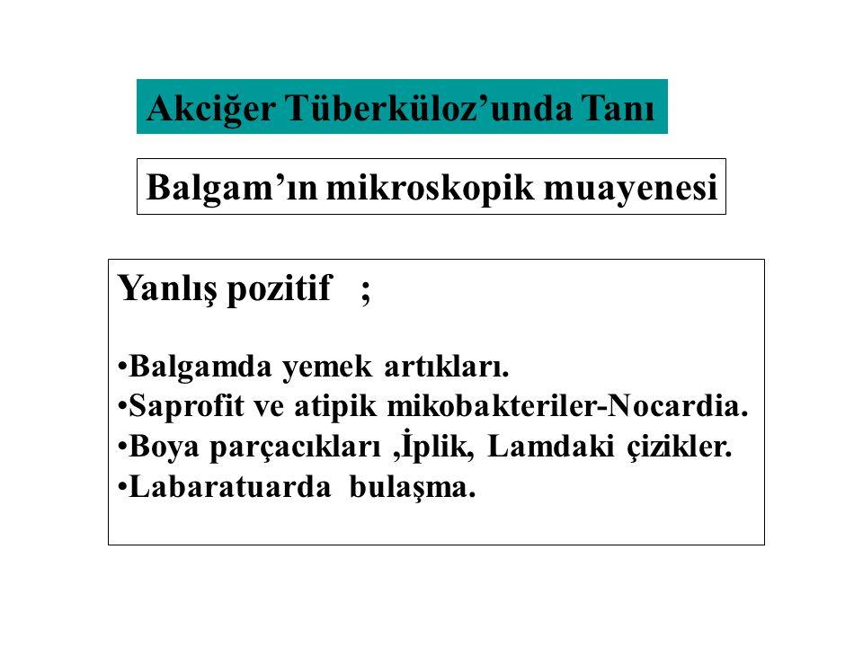 Akciğer Tüberküloz'unda Tanı