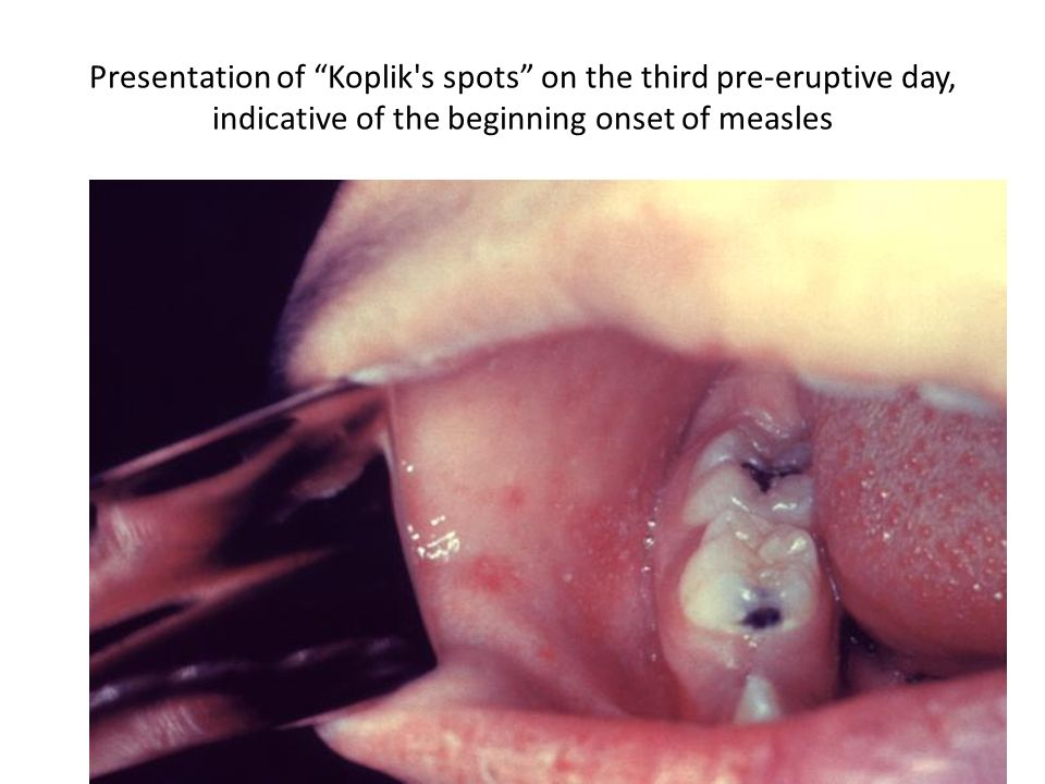 Presentation of Koplik s spots on the third pre-eruptive day, indicative of the beginning onset of measles