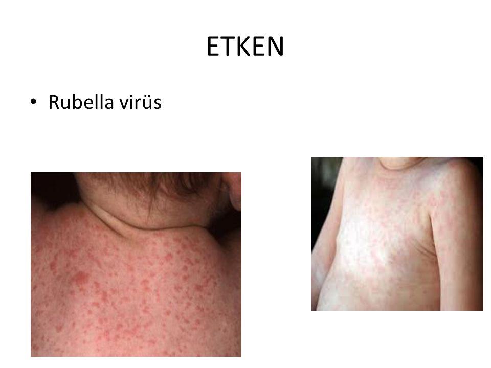ETKEN Rubella virüs
