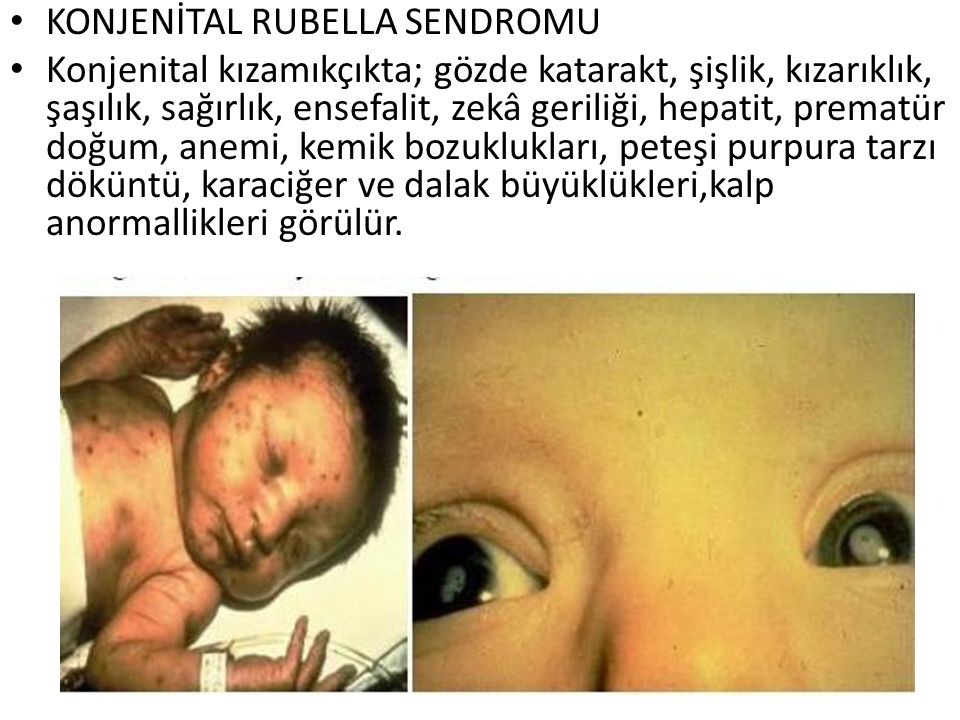 KONJENİTAL RUBELLA SENDROMU
