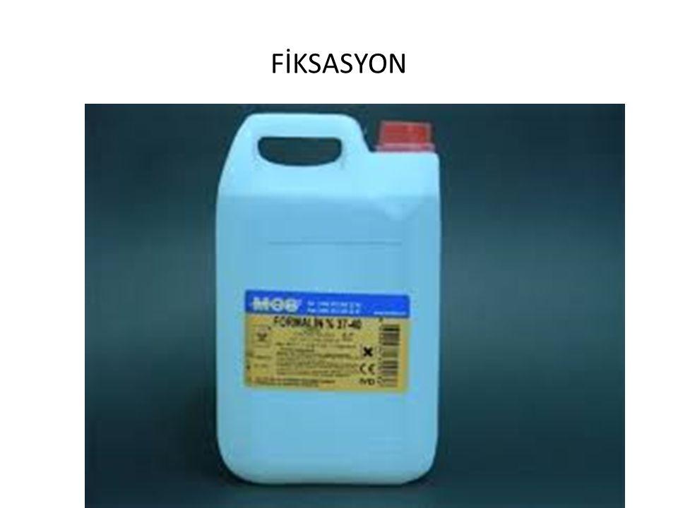 FİKSASYON