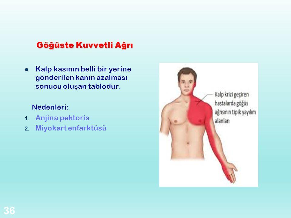 Göğüste Kuvvetli Ağrı Kalp kasının belli bir yerine gönderilen kanın azalması sonucu oluşan tablodur.