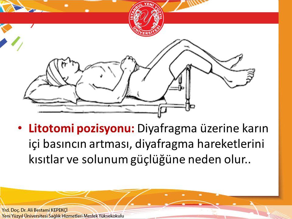 Litotomi pozisyonu: Diyafragma üzerine karın içi basıncın artması, diyafragma hareketlerini kısıtlar ve solunum güçlüğüne neden olur..