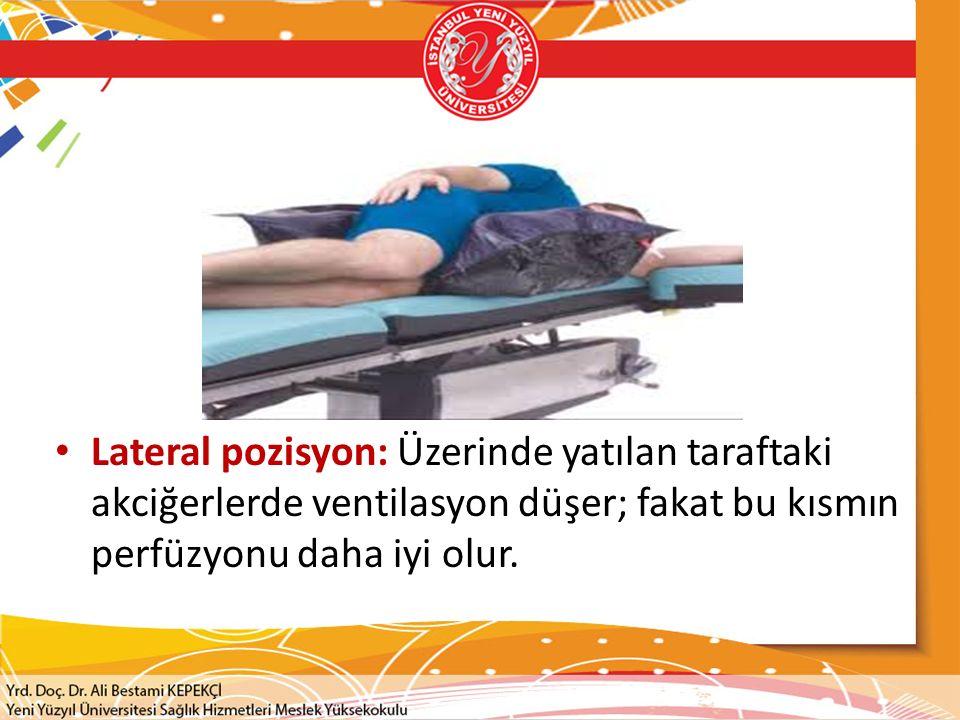 Lateral pozisyon: Üzerinde yatılan taraftaki akciğerlerde ventilasyon düşer; fakat bu kısmın perfüzyonu daha iyi olur.