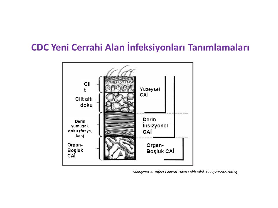 CDC Yeni Cerrahi Alan İnfeksiyonları Tanımlamaları