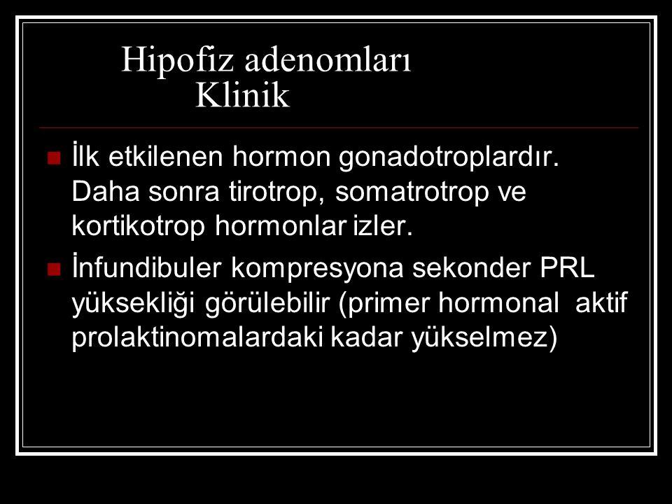 Hipofiz adenomları Klinik