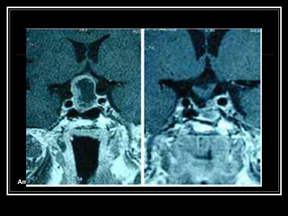 Ameliyat Öncesi Hipofiz Tümörü Ameliyat Sonrası Tümör Çıkarıldıktan Sonra