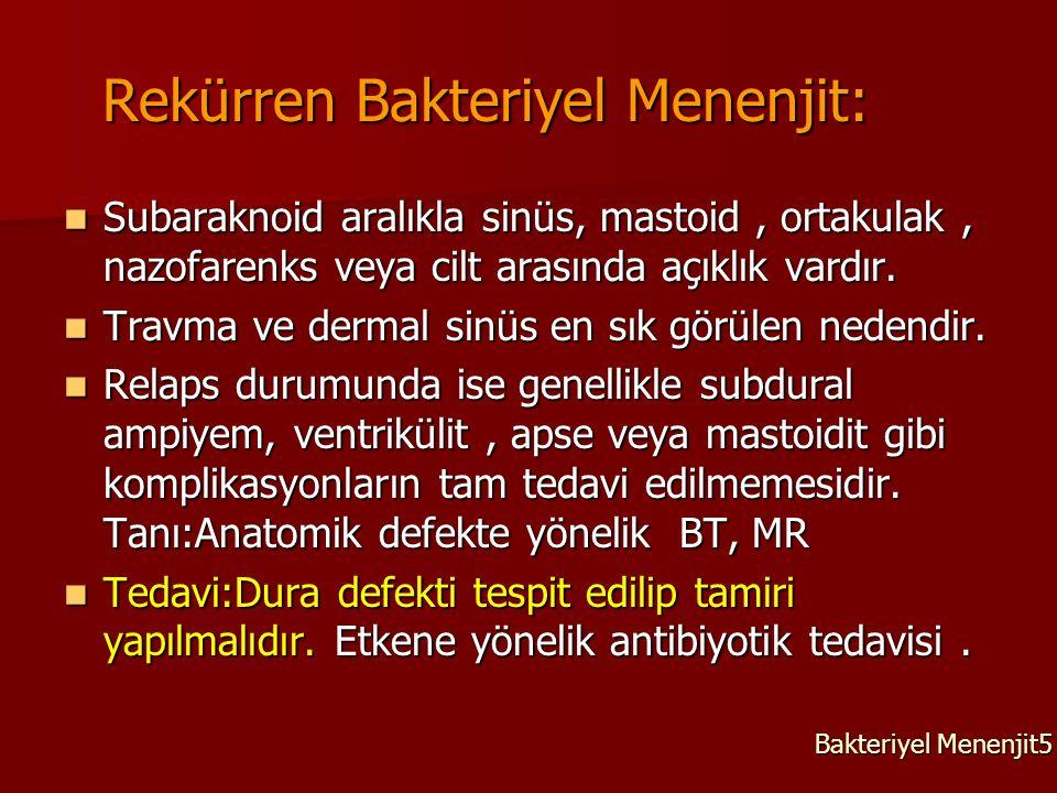 Rekürren Bakteriyel Menenjit: