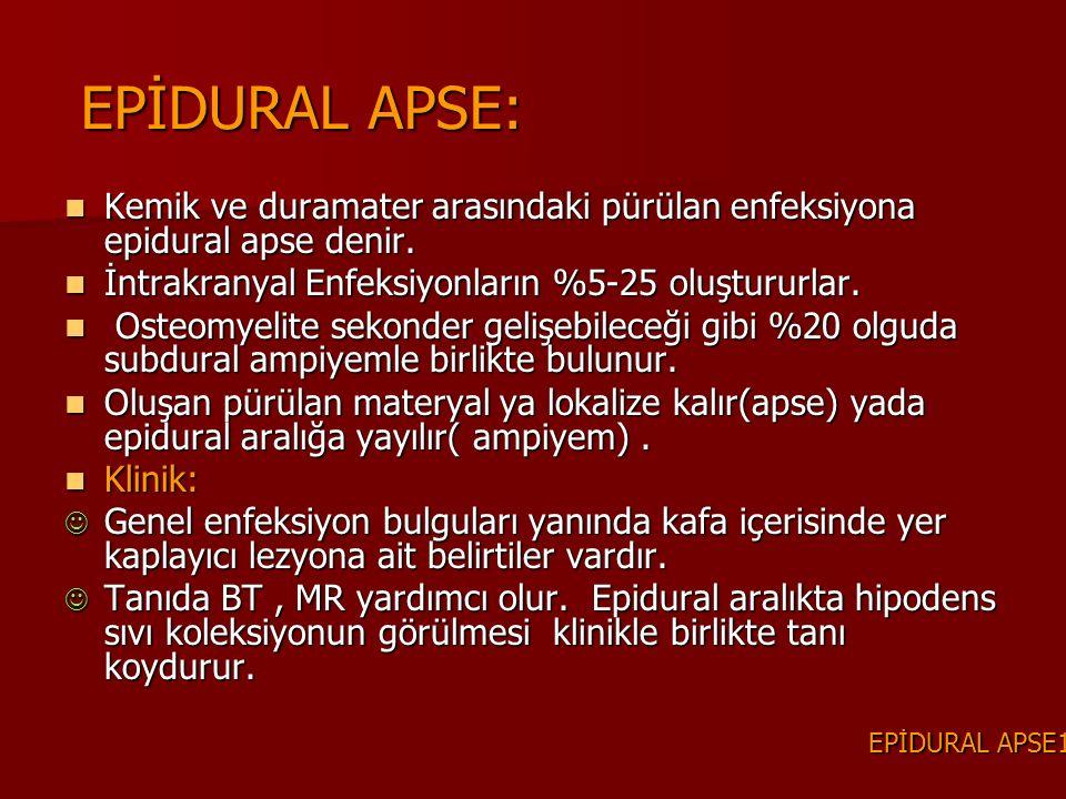 EPİDURAL APSE: Kemik ve duramater arasındaki pürülan enfeksiyona epidural apse denir. İntrakranyal Enfeksiyonların %5-25 oluştururlar.