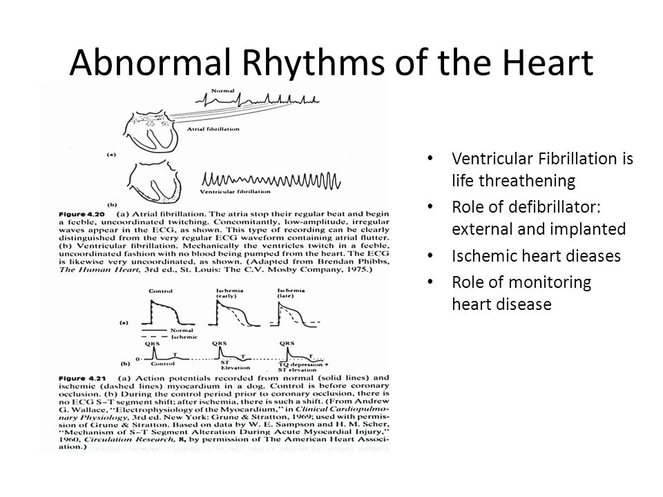 Abnormal Rhythms of the Heart