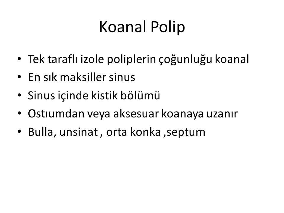 Koanal Polip Tek taraflı izole poliplerin çoğunluğu koanal