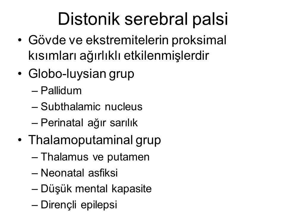 Distonik serebral palsi