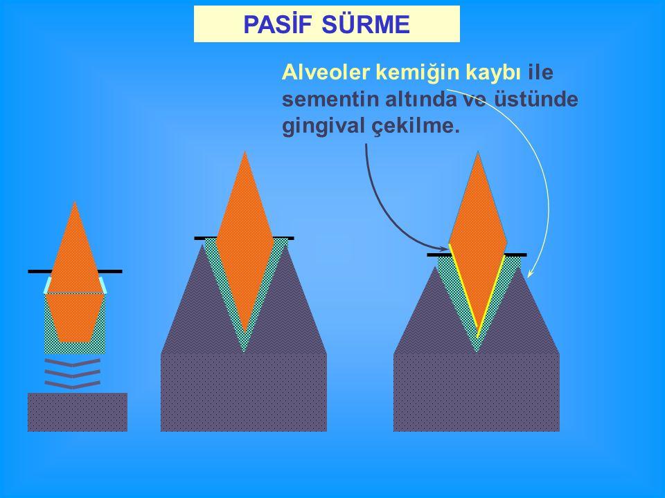 PASİF SÜRME Alveoler kemiğin kaybı ile sementin altında ve üstünde gingival çekilme.