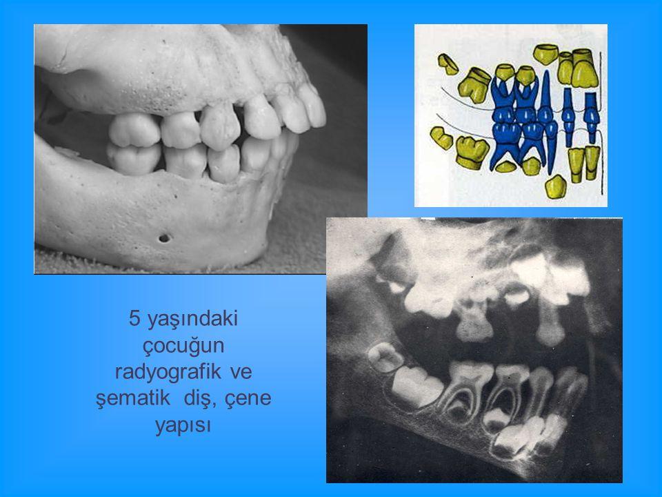 5 yaşındaki çocuğun radyografik ve şematik diş, çene yapısı