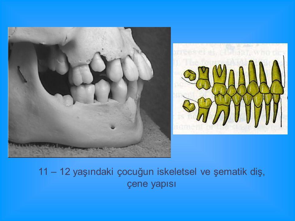 11 – 12 yaşındaki çocuğun iskeletsel ve şematik diş, çene yapısı