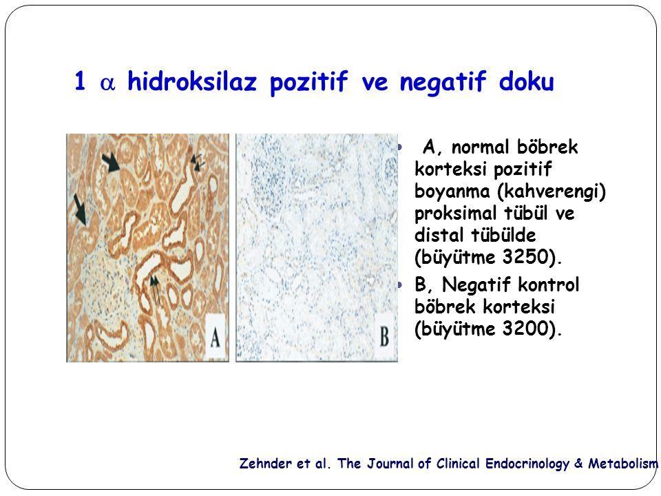1  hidroksilaz pozitif ve negatif doku