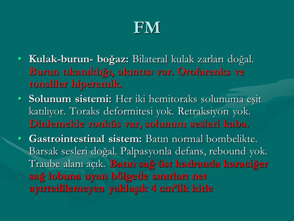 FM Kulak-burun- boğaz: Bilateral kulak zarları doğal. Burun tıkanıklığı, akıntısı var. Orofarenks ve tonsiller hiperemik.