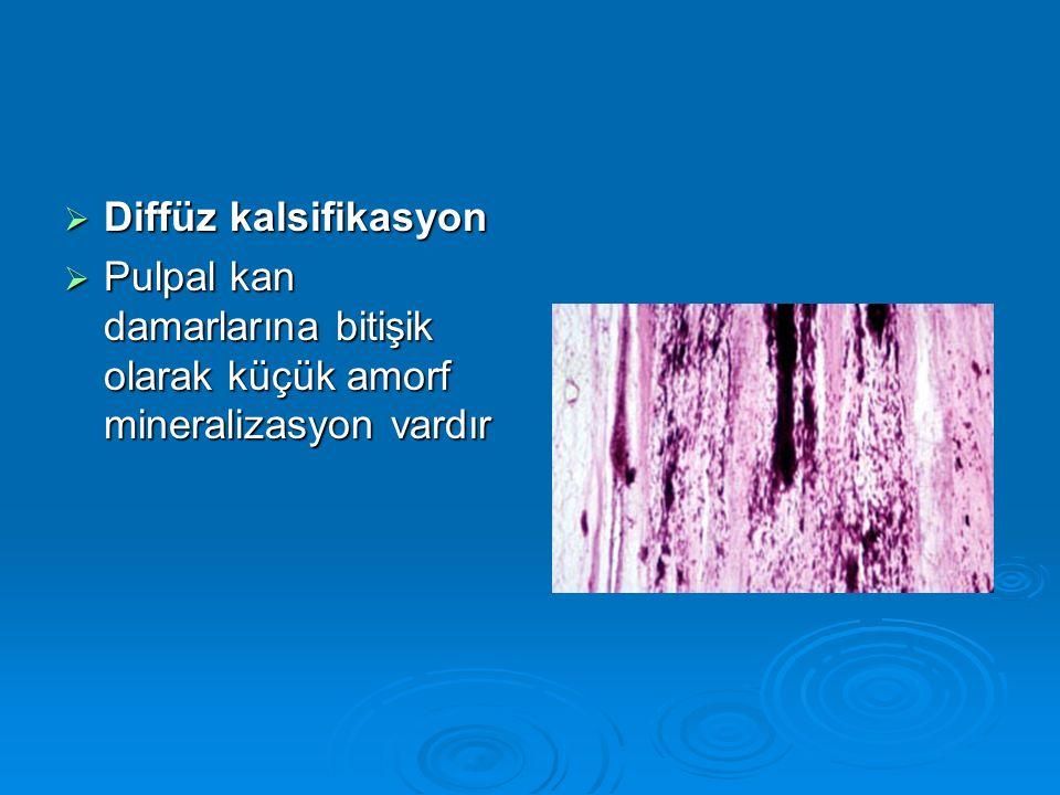Diffüz kalsifikasyon Pulpal kan damarlarına bitişik olarak küçük amorf mineralizasyon vardır
