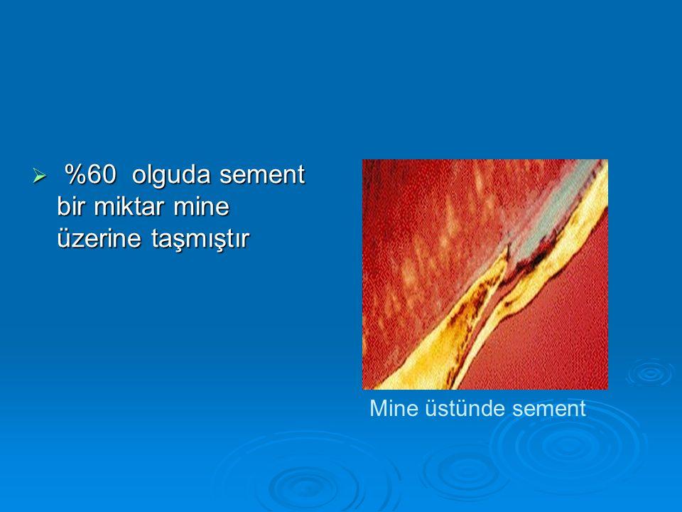 %60 olguda sement bir miktar mine üzerine taşmıştır