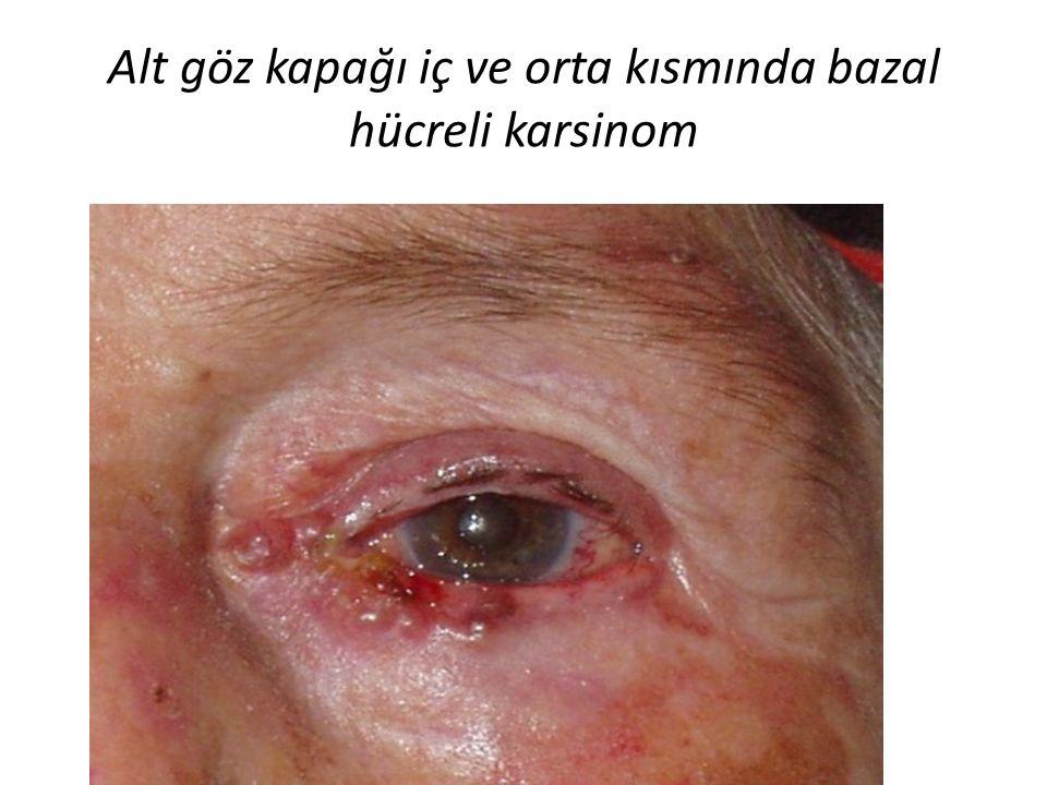 Alt göz kapağı iç ve orta kısmında bazal hücreli karsinom