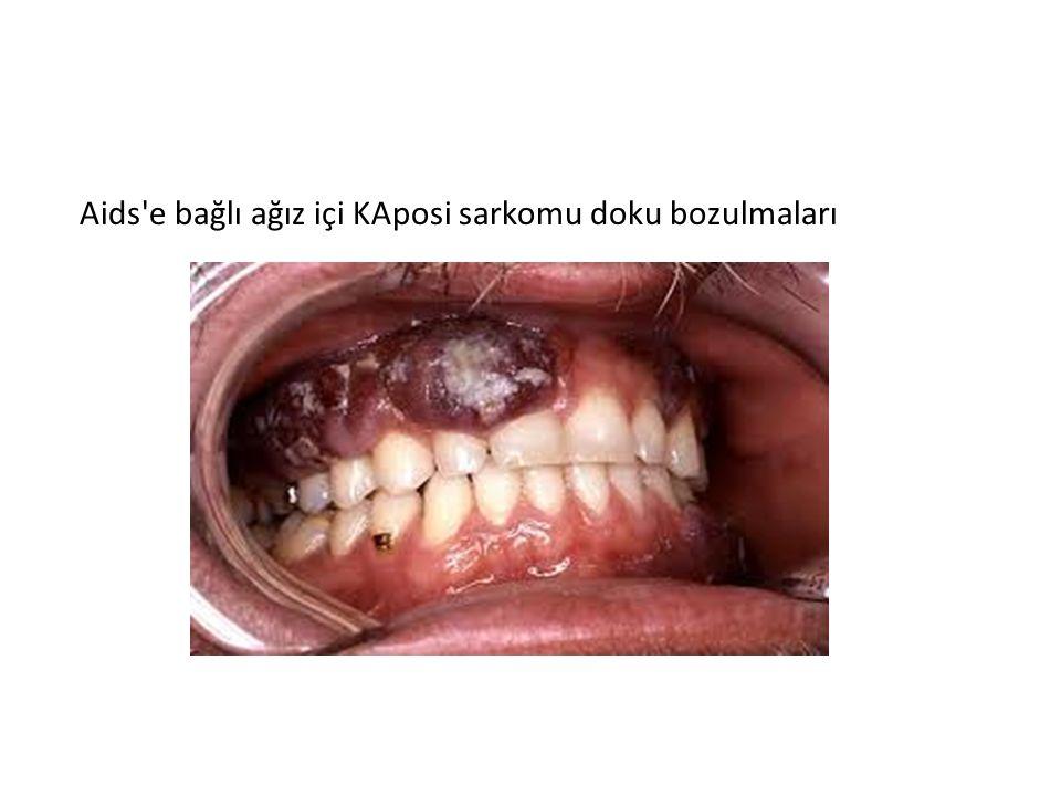Aids e bağlı ağız içi KAposi sarkomu doku bozulmaları
