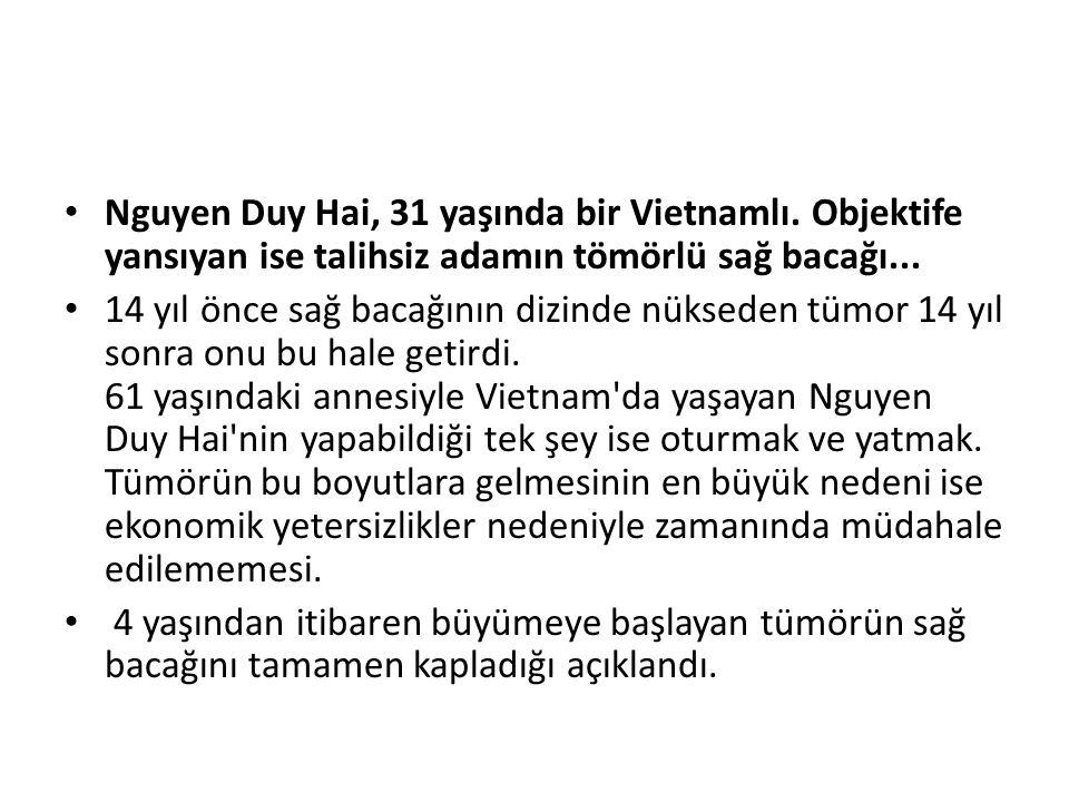 Nguyen Duy Hai, 31 yaşında bir Vietnamlı