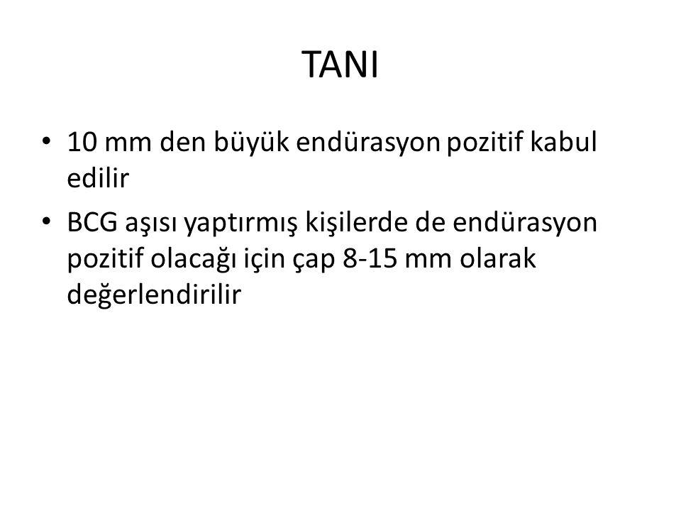 TANI 10 mm den büyük endürasyon pozitif kabul edilir