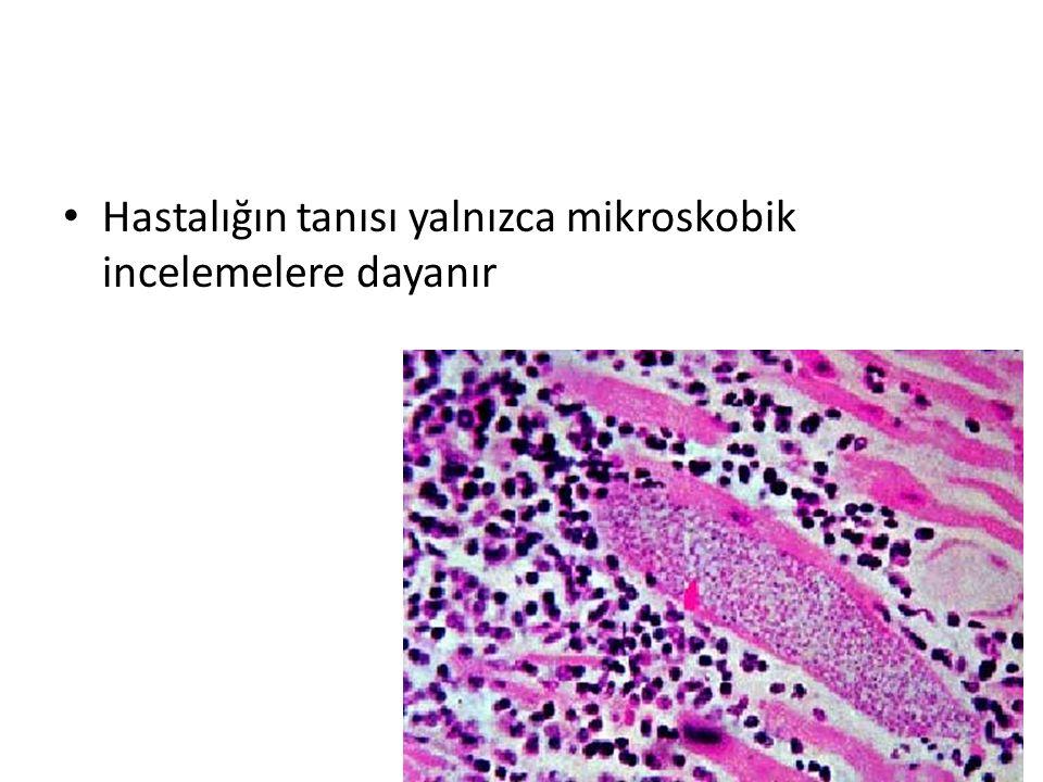 Hastalığın tanısı yalnızca mikroskobik incelemelere dayanır