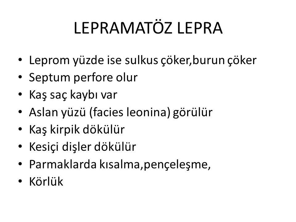 LEPRAMATÖZ LEPRA Leprom yüzde ise sulkus çöker,burun çöker