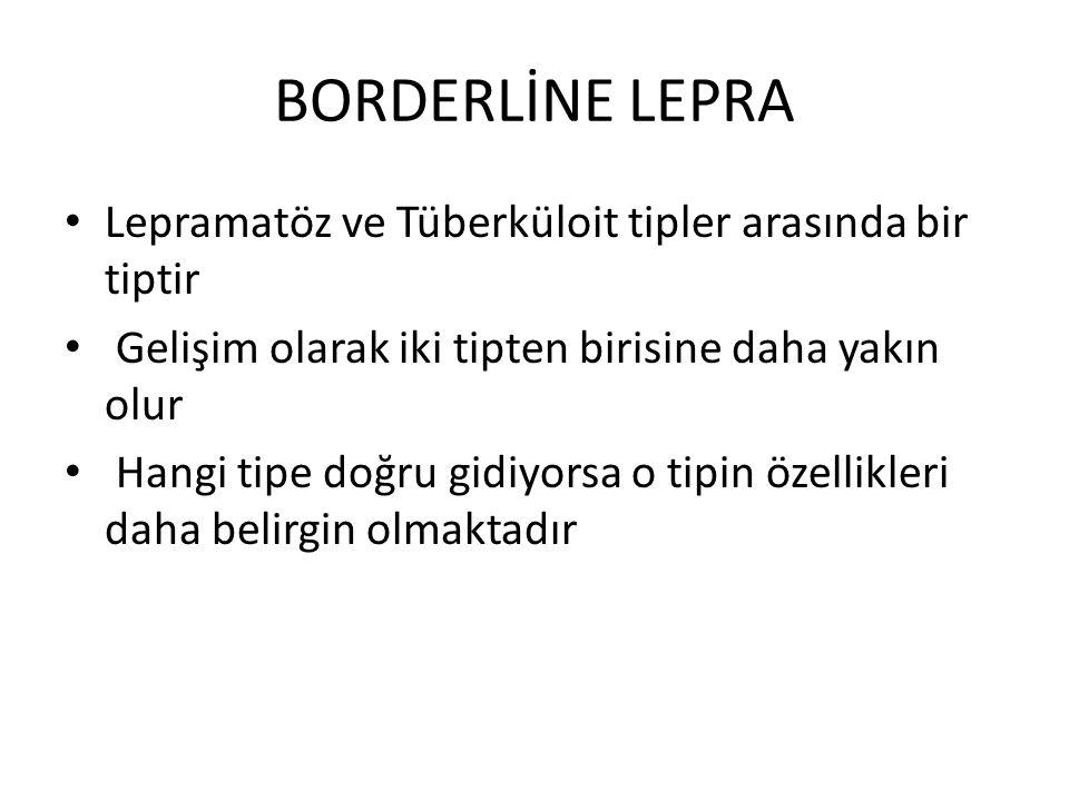 BORDERLİNE LEPRA Lepramatöz ve Tüberküloit tipler arasında bir tiptir